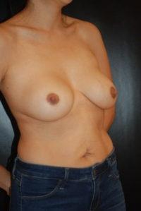Breast Revision / Capsular Contracture