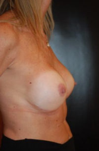 Breast Revision / Capsular Contracture