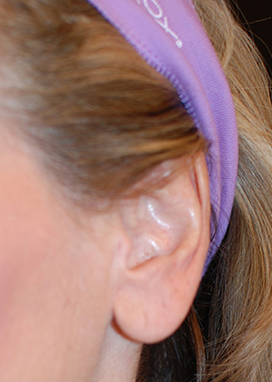 Earlobe Reduction