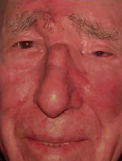 Mohs Surgery Reconstruction